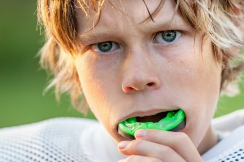 Protecting Your Young Athlete From Dental and Facial Trauma