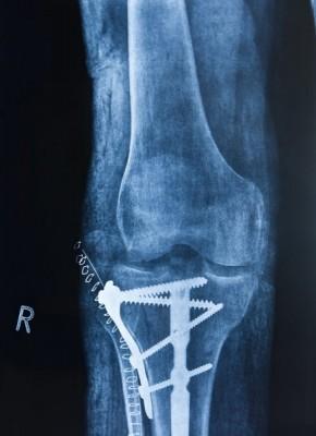 photo of fractured bone